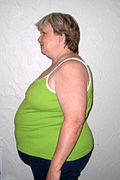 "Bea M. ""Before"" Weight Loss Hypnosis Houston"
